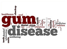 gum disease, periodontal disease